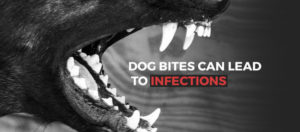 Dog Bites can Lead to Infections