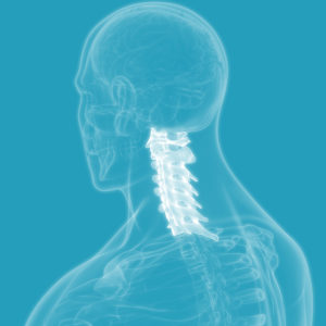 Cost of Spinal Cord Injury